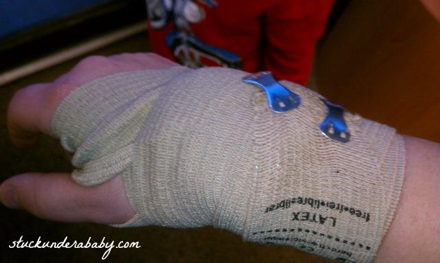 2013-01-28 ace bandage ed